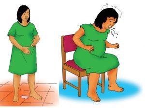 Gambar 7 : Keluhan Pada Saat Hamil