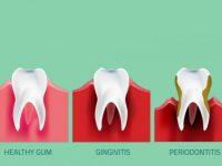 Periodontitis Penyakit Peradangan Pada Jaringan Pendukung GigiPeriodontitis Penyakit Peradangan Pada Jaringan Pendukung Gigi