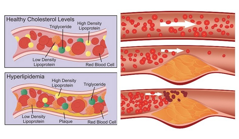 Kelebihan lemak dalam darah atau Hiperlipidemia Menurut Para Ahli