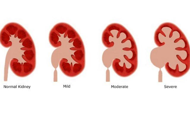Penyakit Ginjal Kronis Menurut Para Ahli